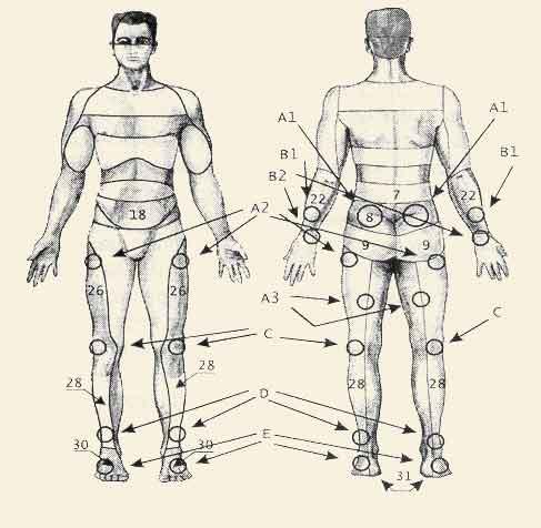 Неврологические симптомы остеохондроза пояснично-крестцового отдела позвоночника (а также радикулиты, миозиты в этом...